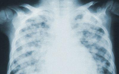 Screening radiográfico, de inspección de tórax en pacientes con COVID-19